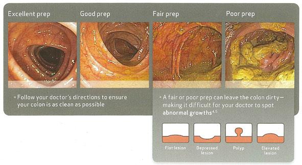 Preparation Split Dose Aman Singh Md Gastroenterolgy For Women